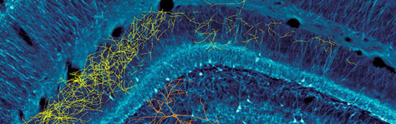 Dr. Buzsaki brain image