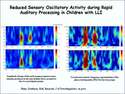 Reduced Sensory Oscillatory Activity during Rapid Auditory Processing in Children with LLI